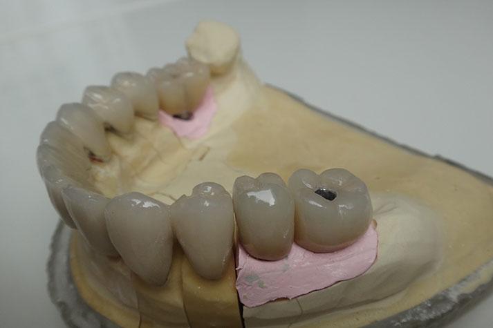 leistungen_implantologie